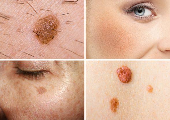 Pigmented Lesions