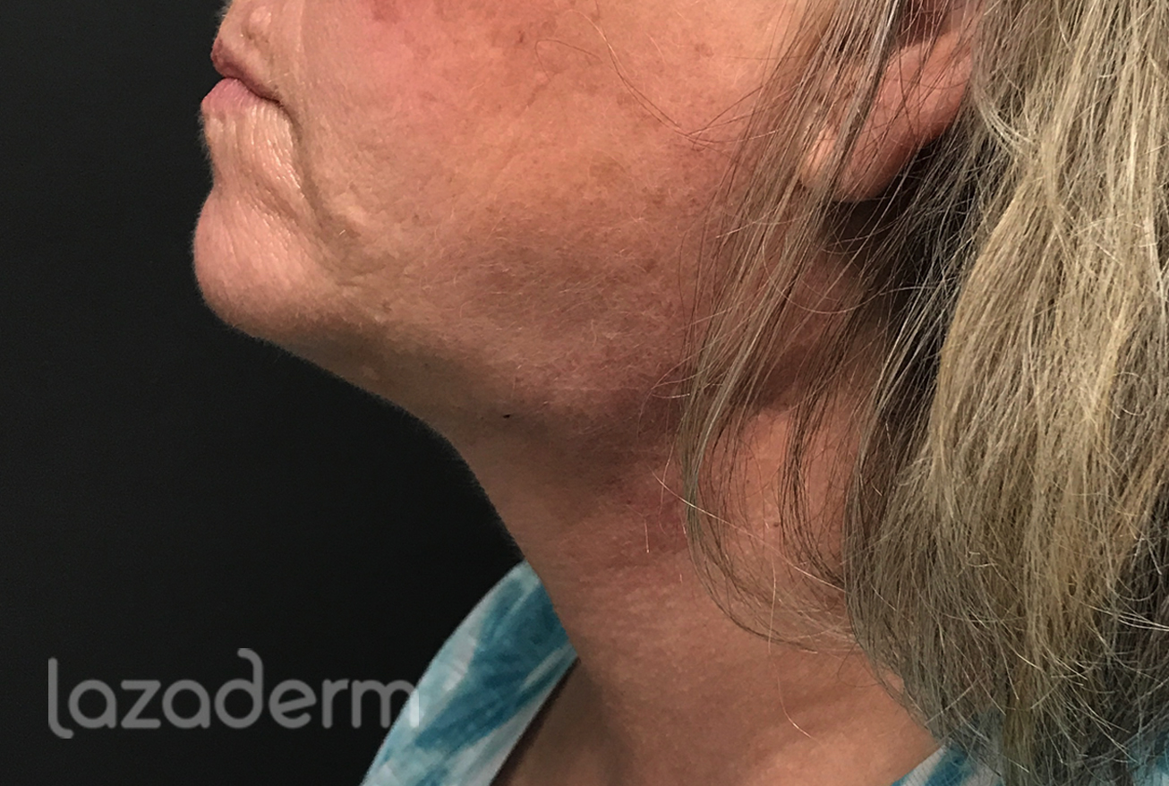Lipo neck after