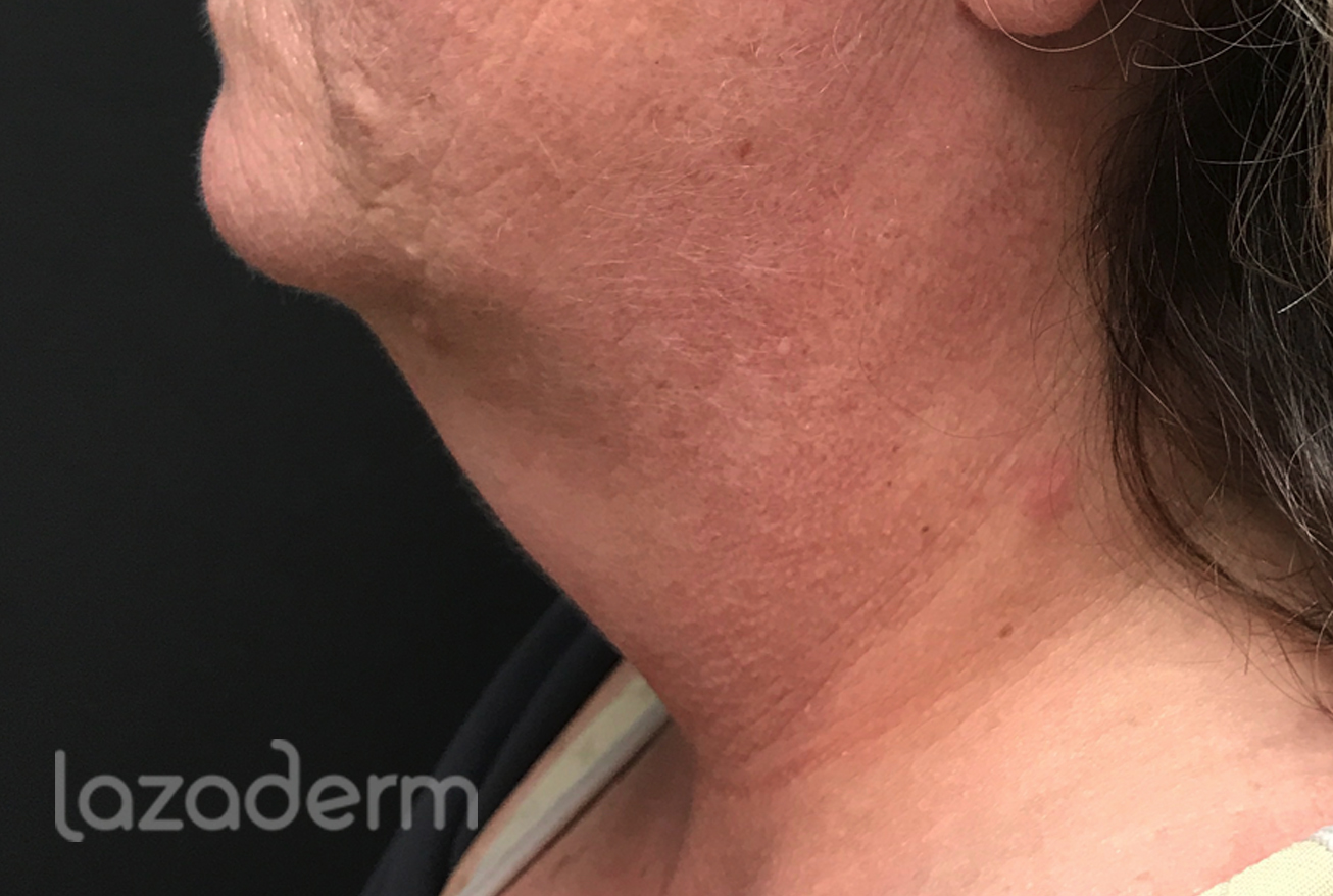 Lipo on neck after