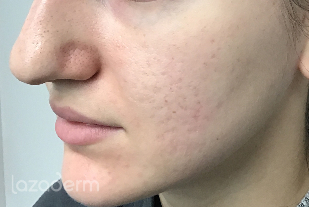 microneedling_with_radiofrequency