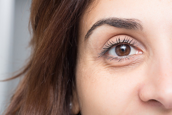 dark circles under eye