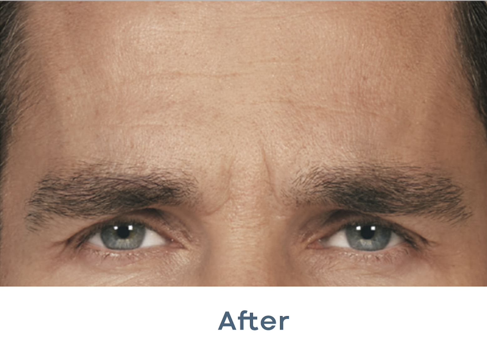 botox_before_and_after